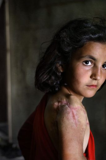 FILE -- In this May 29, 2014, file photo, Lujain Hourani, 11, a Syrian refugee girl who lost part of her shoulder in a government forces airstrike in the Syrian village of Zara, near Homs, stands outside her family room, at a collective center where many Syrian refugees live, in Kirbet Daoud village in Akkar north Lebanon. The U.N. agency for children says more than 80 percent of Syria's children have been harmed by the five-year-old conflict, including growing numbers forced to work, join armed groups or marry young because of widening poverty. (AP Photo/Hussein Malla, File)